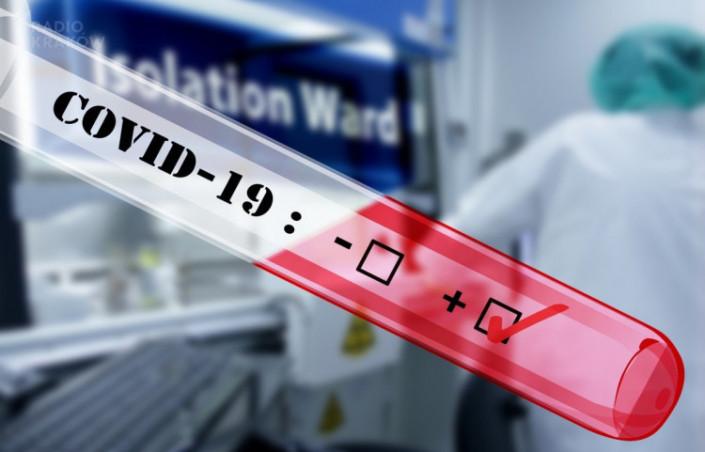 Koronawirus – 28 grudnia 2020. Poświąteczny spadek liczby zakażeń i zgonów